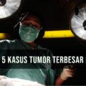 5 Kasus Tumor Terbesar di Dunia