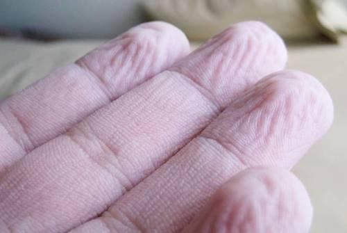 tangan berkerut karena penyempitan pembuluh darah