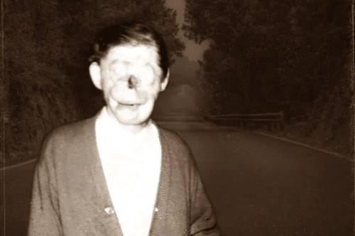 Charlie no Face ternyata bukan hantu tapi manusia biasa yang mengalami kecelakaan