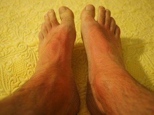 efek sunburn di area kaki Manusia karena radiasi sinar UV