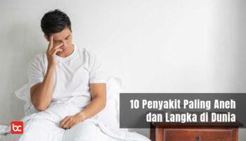 10 Penyakit Manusia yang Paling Aneh dan Langka di Dunia