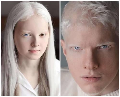 Amina dan Bera adalah contoh kondisi albino yang tetap cantik dan tampan bahkan menjadi model