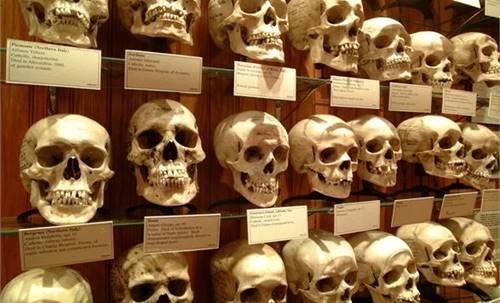 Museum anomali organ manusia di Philadelphia Amerika