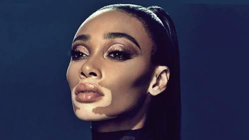 Penderita Vitiligo juga dipengaruhi Melanin dalam tubuhnya